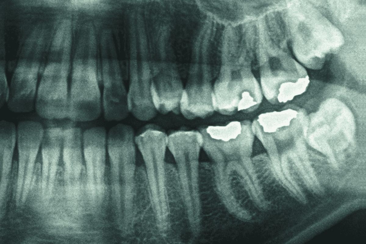 Ваши зубы могут записывать самые важные биологические события вашей жизни