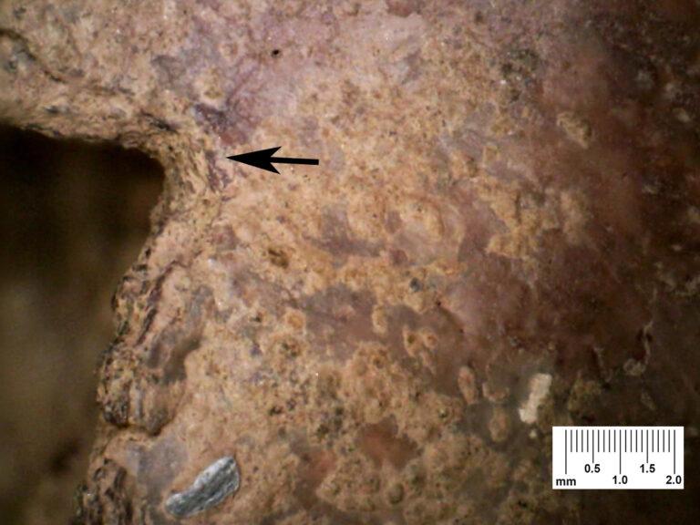 Рана черепа показывает, насколько смертельными могут быть средневековые стрелы